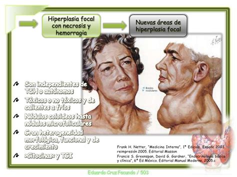 netter medicina interna bocio eutiroideo