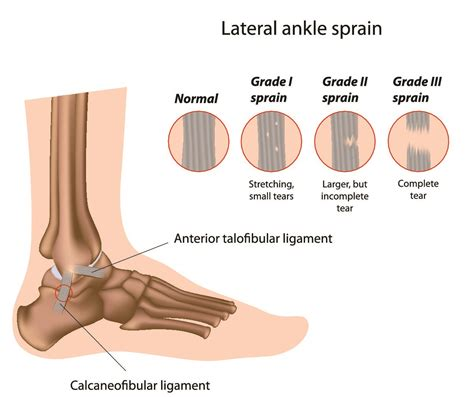 sprained ankle ankle injury guide joint treatment for sprained ankles physicool