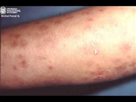 imagenes videos fotos la sifilis wmv youtube