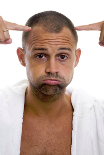 Balding And Receding Hair Lines | matching hairlines matching hair loss