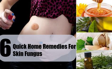 Home Skin Remedies by Search Results For Pores And Skin Yeast Infection Remedy
