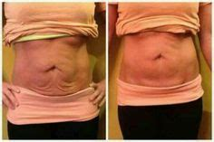 tighten stomach after c section tips on how to tighten loose skin after weight loss on