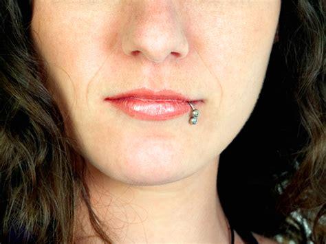 Pelindung Gigi Bruxism Top 10 Keluhan Pada Gigi Dentia Dental Care Center