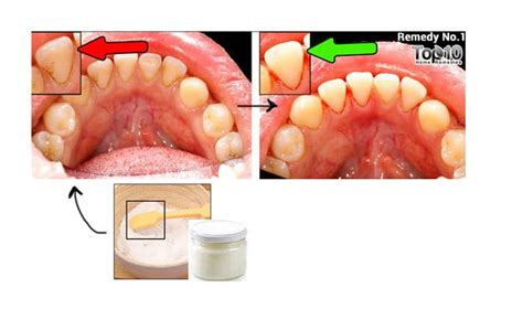 how to naturally remove plaque and tartar from teeth top
