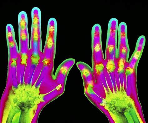 reuma test reumafactor www bloedwaardentest nl