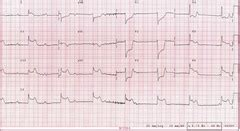 cp1 1.8 angina flashcards   quizlet