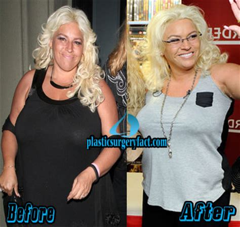 and beth chapman beth chapman plastic surgery secrets revealed