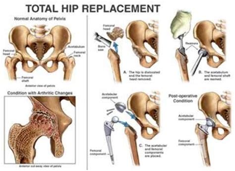 india surgery cemented total hip replacement,cost cemented