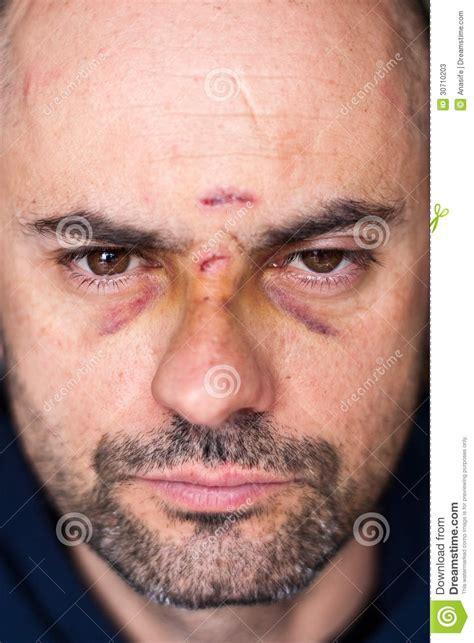imagenes ojos morados hombre herido con los ojos morados fotos de archivo