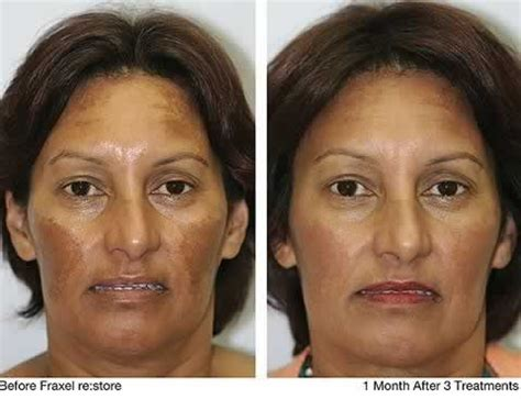 before and after pictures of pigmentation on skin dark skin pigmentation on face all about hyperpigmentation