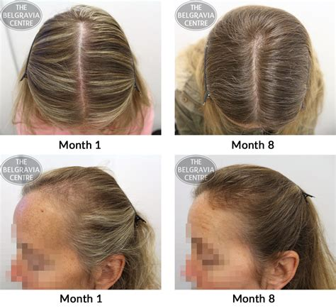 female pattern hair loss pictures belgravia hair loss blog