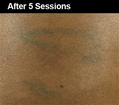 tattoo removal for black skin laser removal before and after pictures wifh