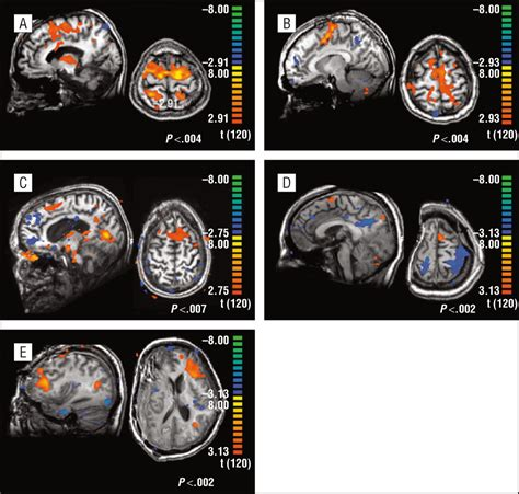 pattern classification fmri pattern classification of volitional functional magnetic