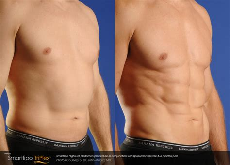 smartlipo honolulu laser lipo hawaii medical skin care