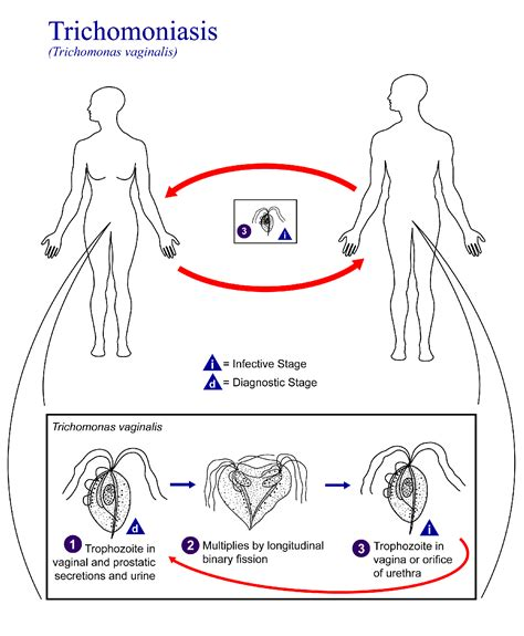 trichomoniasis symptoms in and by dr eist