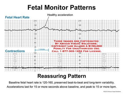 pattern of heart rate variability amicus illustration of amicus chart fetal monitor heart
