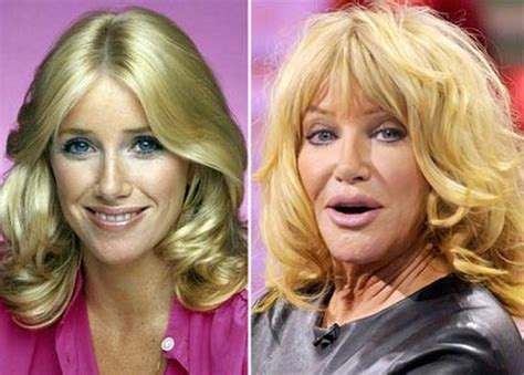 suzanne somers celebrity plastic surgery 24 suzanne somers before and after pictures
