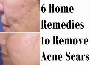 home remedies for acne scars 6 home remedies to remove acne scars medimiss
