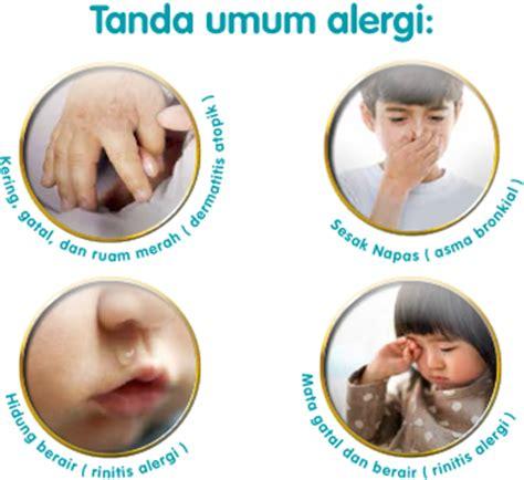 Obat Minum Mata Bintitan penyebab dan gejala alergi