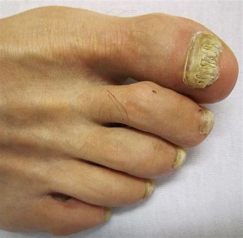 nail bed fungus nail fungus onychomycosis causes pictures treatment phaa com
