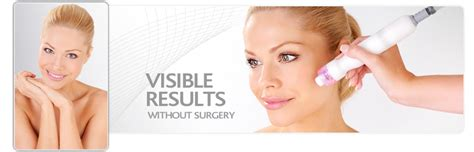 homeoinformation treatment menopause caci non surgical facelift catford hair beauty salon