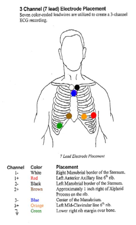 pediatric lead placement diagram 5 lead ekg placement wiring diagrams repair wiring scheme