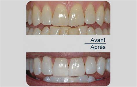 Meilleur Cabinet Dentaire by Meilleur Cabinet Dentaire