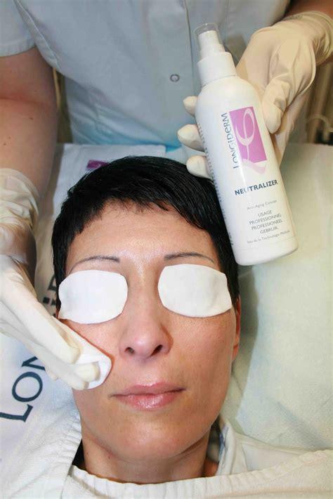 10 glycolic acid peel side effects skin expert lipo ha peeling of longiderm