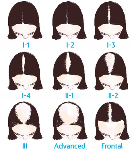 ludwig scale female androgenetic alopecia telogen effluvium related keywords telogen effluvium