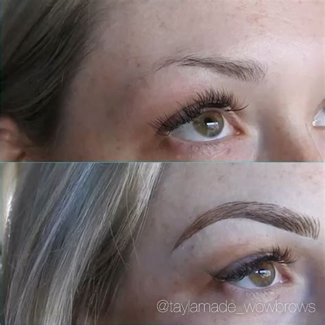 laser hair removal eyebrows melbourne om hair