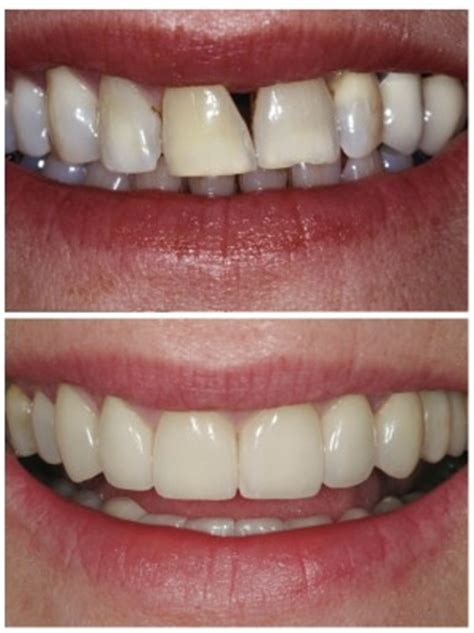 gap in teeth advanced dentistry