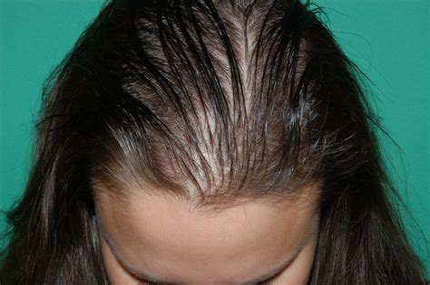 hair style for female balding hair women s hair loss chicago gold coast milwaukee
