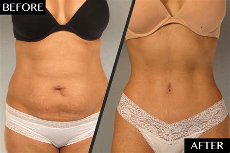 will insurance pay for tummy tuck after c section a plastic surgeon s secret to dramatic tummy tuck