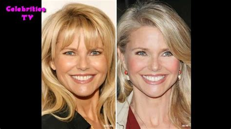 Christie Brinkley Gets Emergency Surgery by 1000 Id 233 Es Sur Le Th 232 Me Christie Brinkley Plastic Surgery