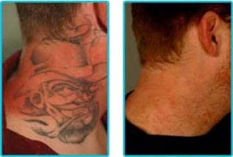 laser tattoo removal los angeles april 2015 free pictures