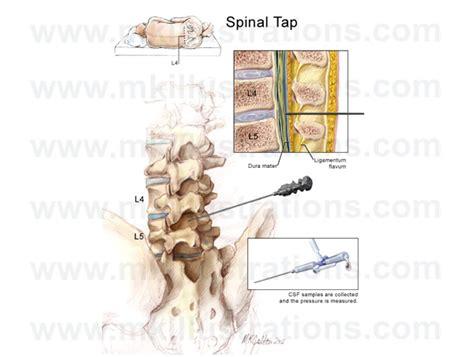 spinal tap c section mkillustrations medical illustrations