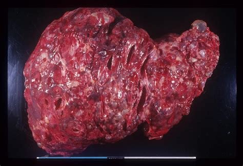 liver cancer liver cancer argentina pdf ppt reports symptoms treatment