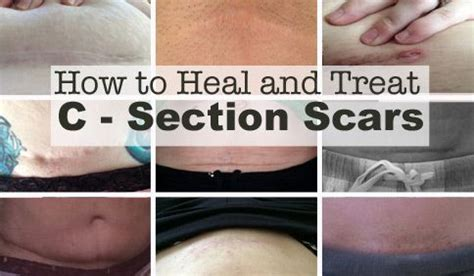 Best Way To Heal After C Section by Best 25 C Section Ideas On C Section Recovery Post C Section And Post Baby Belly