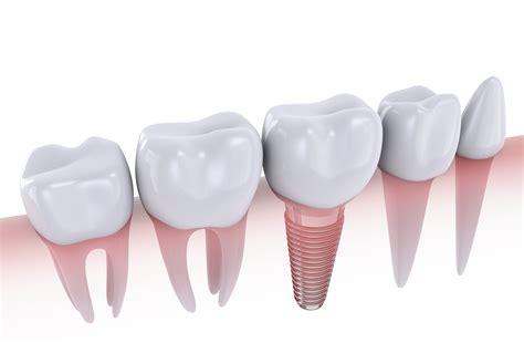 advantages   dental implants traceybell
