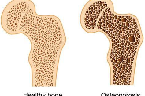 alimentos contra la osteoporosis alimentos de soya puede proteger de la osteoporosis a