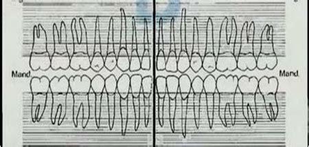 Tang Cabut Gigi Dewasa Premolar A 7 radiografer world dental dan pnoramic