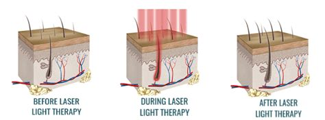 does light therapy work for hair growth low level laser therapy lllt for hair loss laser hair