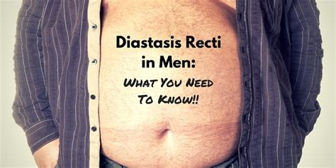 diastasis recti  men