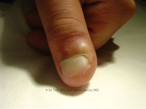 infected nail bed infected nail bed 28 images paronychia nail infection