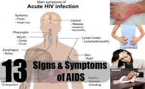 13 signs amp symptoms of aids how to identify symptoms of aids diy
