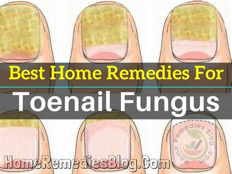12 best home remedies for toenail fungus home remedies