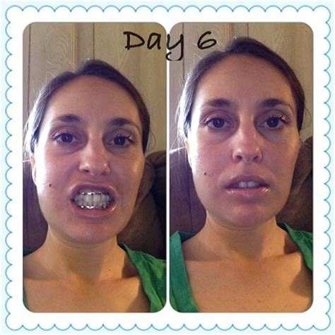 wired jaw surgery diary of a jaw wired shut made