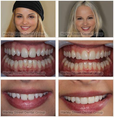 improved  smile  enlighten whitening