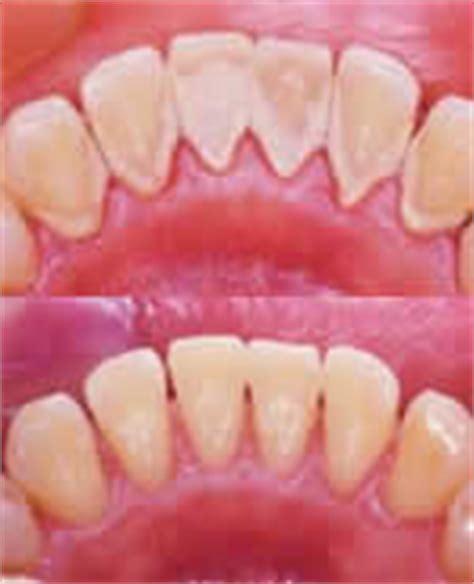 carie interna sintomi visita di controllo dal dentista pulizia dei denti