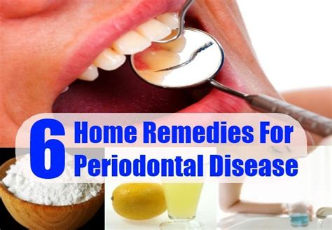 periodontal disease home remedies treatments